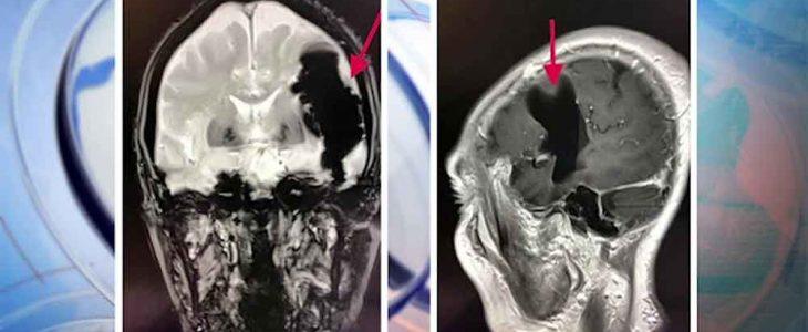 โรคลมเข้าสมอง ภัยร้ายใกล้ตัว
